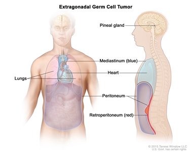 Extragonadal germ cell tumor; drawing shows parts of the body where extragonadal germ cell tumors may form, including the pineal gland in the brain, the mediastinum (the area between the lungs), and the retroperitoneum (the area behind the abdominal organs). Also shown are the heart and peritoneum.